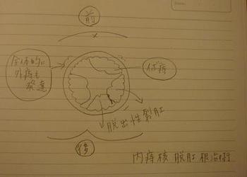 痔主ノート(術前).jpg